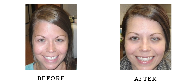 Smile Gallery - Before and After Dental Photos - Smile Makeovers